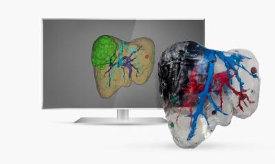 Health Time presenta la Unidad de Impresión 3D Médica